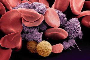 Scanning electron microscopy (SEM) of human blood cells; © Dr. M. Oeggerli, micronaut.ch